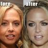 Ботокс в лоб: фото до і після і відгуки жінок про якість і результати цієї процедури
