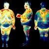 Чим небезпечний вісцеральний жир і як від нього позбутися