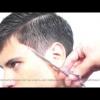 Уколи ботокса в лоб